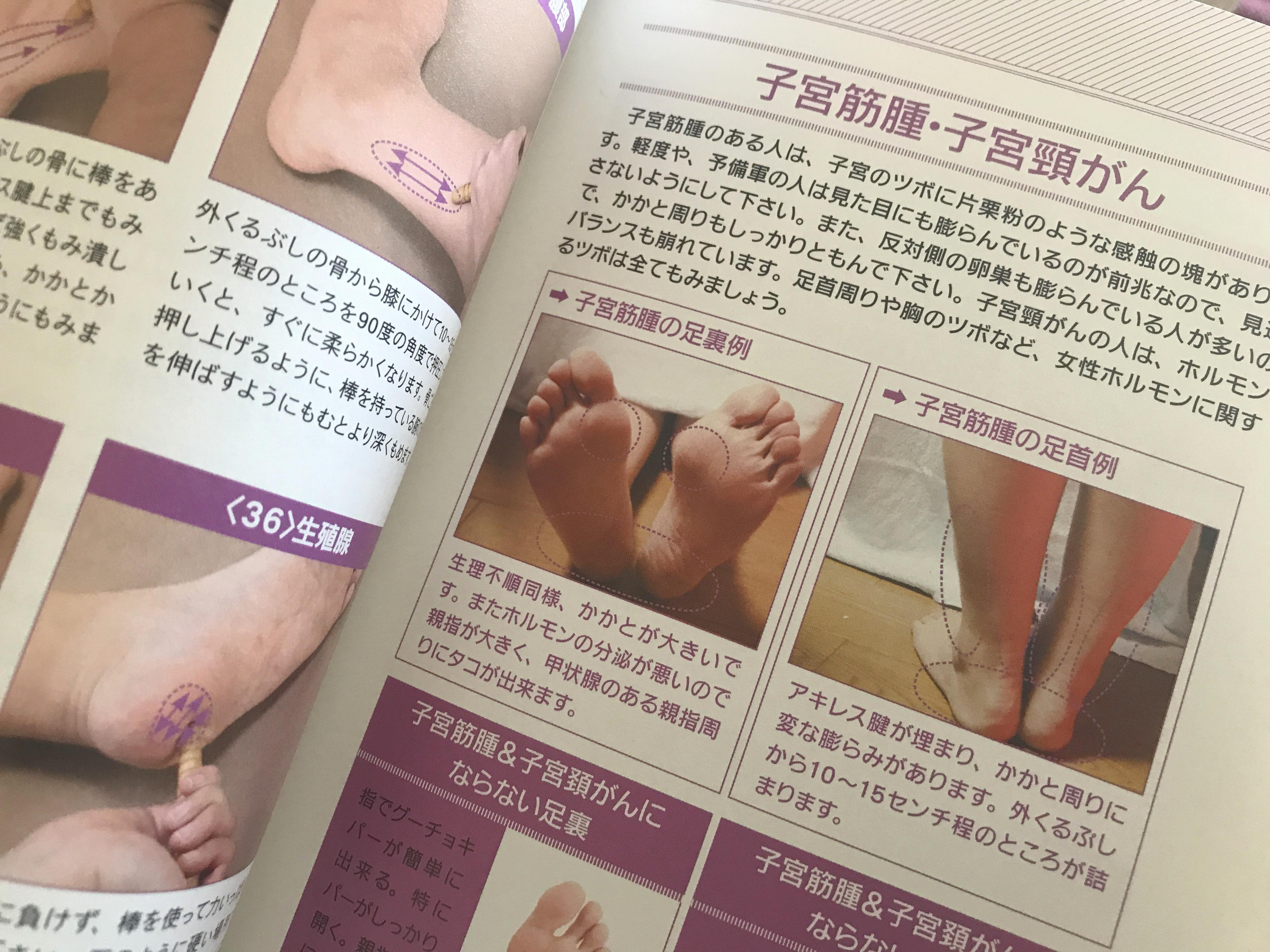 子宮筋腫の人の足裏