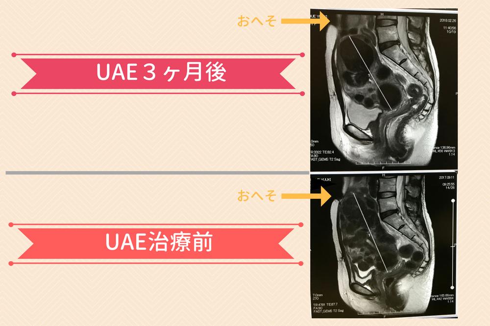 UAE後のMRI検査の結果